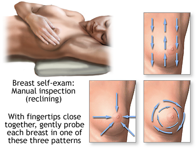 Self Breast Examination